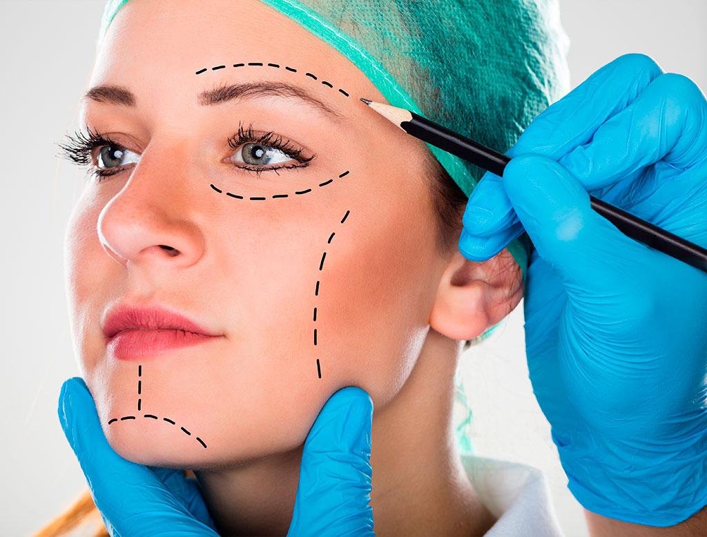 cirurgia facelift
